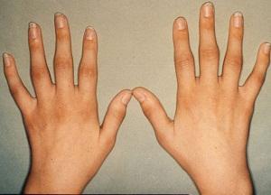 Опухоль суставов пальцев изделия из турмалина при заболевании суставов во владивостоке