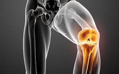 методы лечения болезни Гоффа коленного сустава