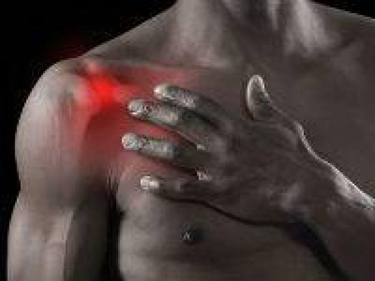 шейный артрит плечевого сустава