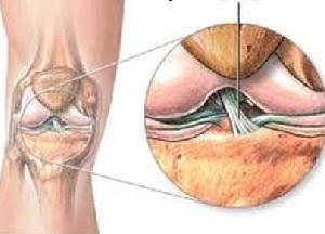 методы лечения лигаментоза коленного сустава