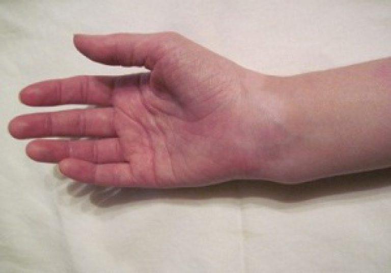 Перелом лучевой кости руки сколько болит рука