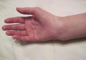 перелом лучевой кости руки лечение срок срастания