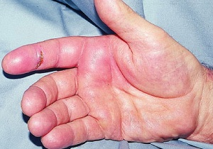 теносиновит сухожилия