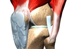 лигаментоз крестообразных связок коленного сустава лечение