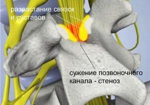 лечение стеноза