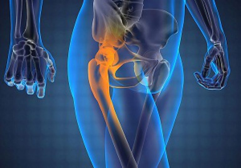 что делать при сильной боли в тазобедренном суставе