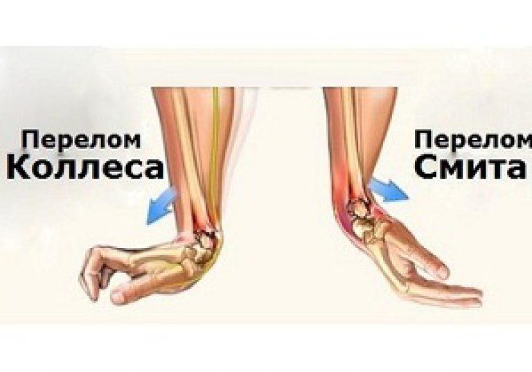 Артрит запястья руки после травмы на master-nastroeniya.ru