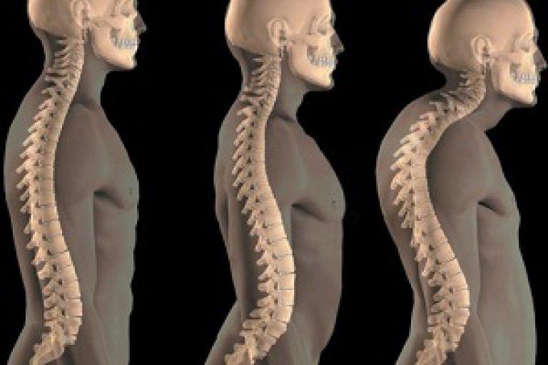 Искривление позвоночника шейного отдел симптомы