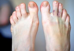 чем лечить ушибленный палец на ноге