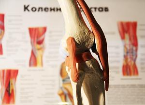 как лечить коленный артрит