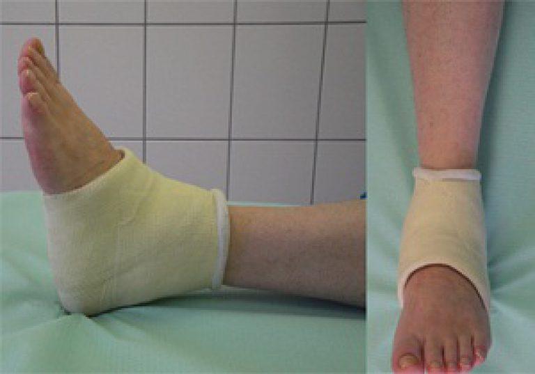 Сколько времени нужно бинтовать ноги после операции