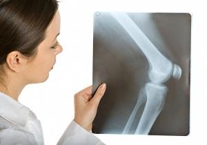 болезнь кенига рассекающий остеохондрит