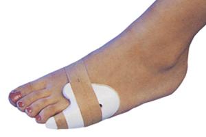 признаки перелома мизинца на ноге