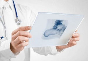 лечение пяточной шпоры рентгенотерапией