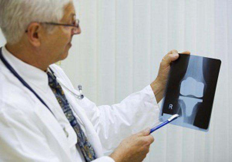 врач лечит артроз