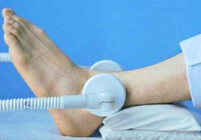 алмаг лечение артроза голеностопного сустава