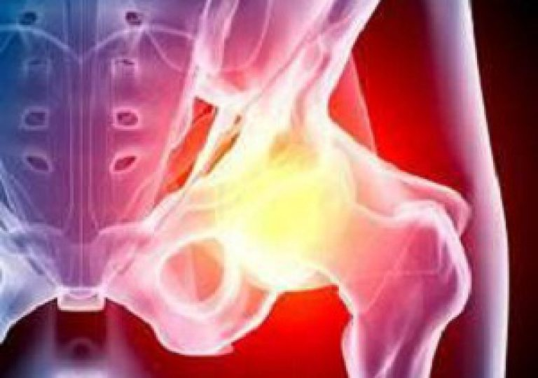Как лечить тазобедренный сустав народная медицина