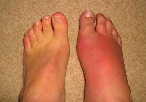 боли суставах больших пальцев ног