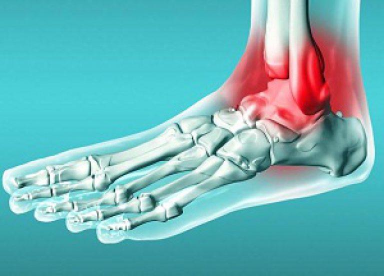 позволяет зафиксировать голеностопный сустав и предупредить вывихи и растяжения