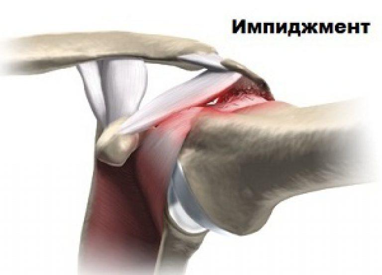 востановление плечевого сустава