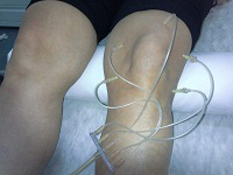 уколы озона в коленный сустав отзывы
