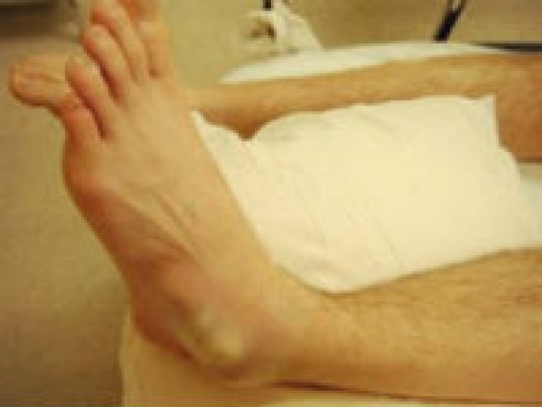 Лечение вывиха голеностопа в домашних условиях