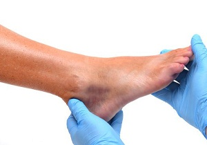 большая шишка ноге возле большого пальца