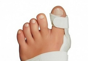 шишка на большом пальце ноги как лечить