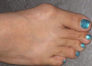методы лечения шишки на ноге народными средствами